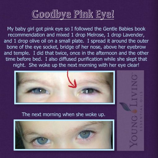 Pink eye remedy with Young Living essential oils