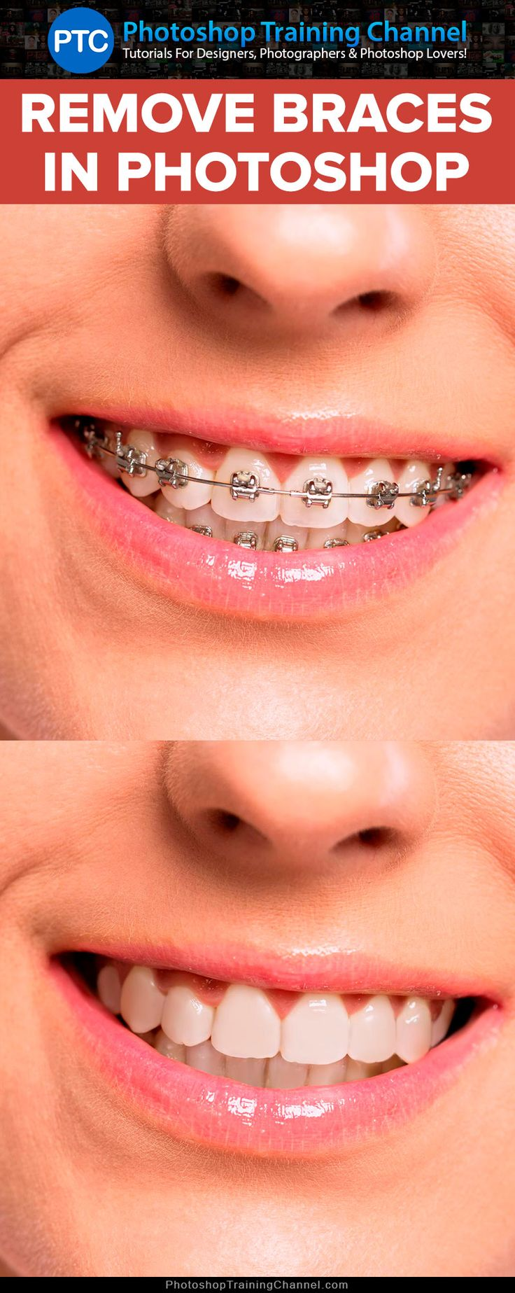 In this tutorial, you'll learn how to remove braces with Photoshop.