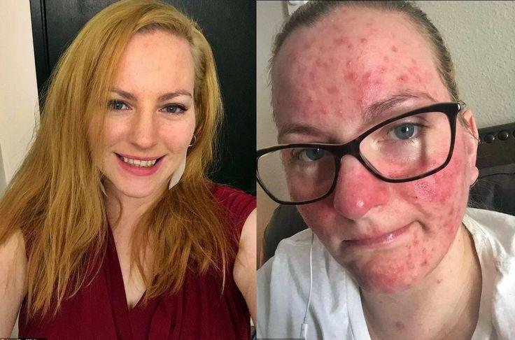 Po szczepieniu na grypę straciła wzrok i zachorowała na stwardnienie rozsiane