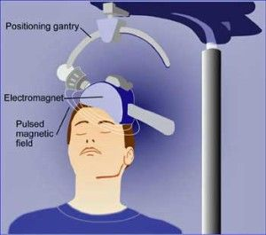 rTMS provides a novel means of reducing pain and improving cognition in FM/ME/CFS ~~ That idea behind the use of  repetitive transcranial magnetic stimulation (rTMS), a magnetic therapy being pursued in disorders ranging from fibromyalgia to Alzheimer's to multiple sclerosis to schizophrenia. .... Read more at: http://www.cortjohnson.org/blog/2013/07/18/zapping-your-pain-away-is-transcranial-magnetic-stimulation-future-pain-relief-fibromyalgia-and-me-cfs/