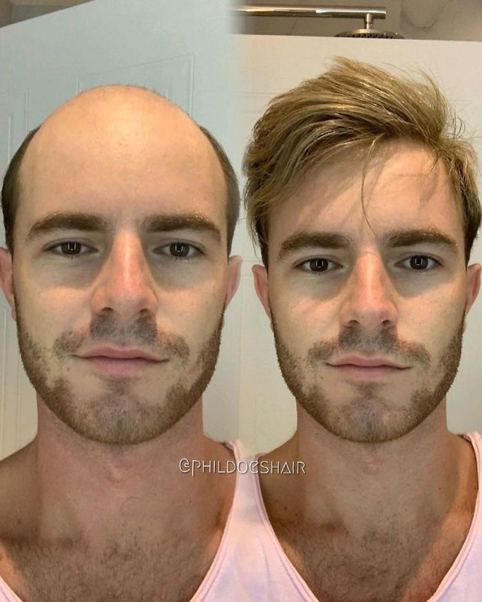 Before After Hair Replacement Phildoeshair Hair Replacement For Men Hair Replacement Hair Replacement Systems