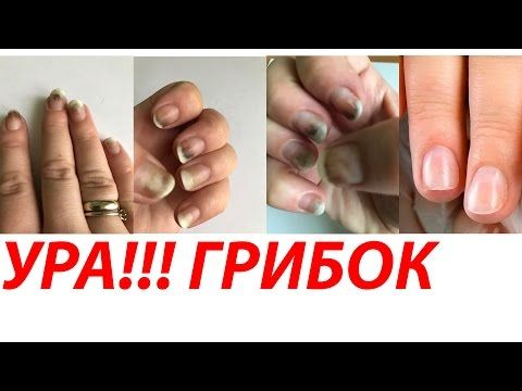 В этом видео я вам покажу очень классный способ, как избавиться от грибка ногтей. Грибок ногтей (онихомикоз) – самое распространенное заболевание, при которо...
