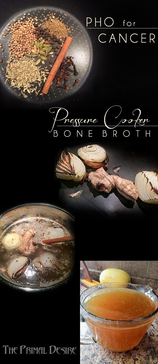Pho for Cancer - Pressure Cooker Bone Broth - Raj's sister makes this Pho Flavored Pressure Cooker Bone Broth for her family to drink to strengthen their immune system. Please support her cancer fundraising. http://wp.me/p4Aygm-24B