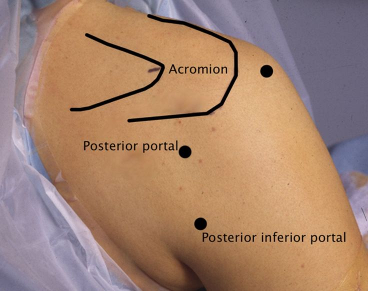 posterior shoulder steroid injection technique