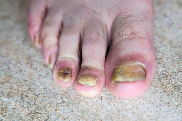 Cure Foot Fungus Best Toenail Fungus Medicine Over The Counter ...