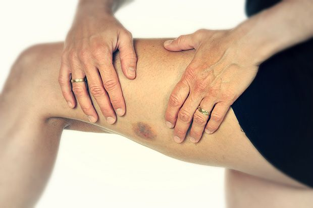 How to Heal Bruises Faster | 1mhealthtips
