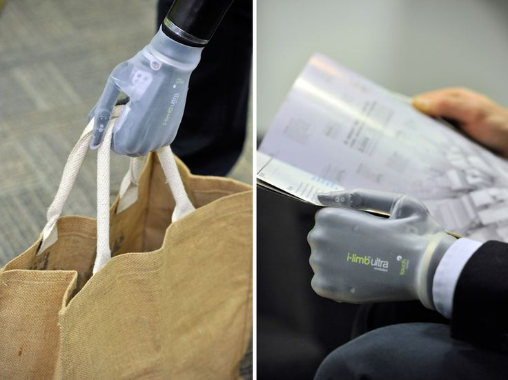 touch bionics app-controlled prosthetic hand