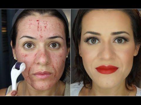 Microagulhamento - Antes e depois! Vigésima aplicação - YouTube