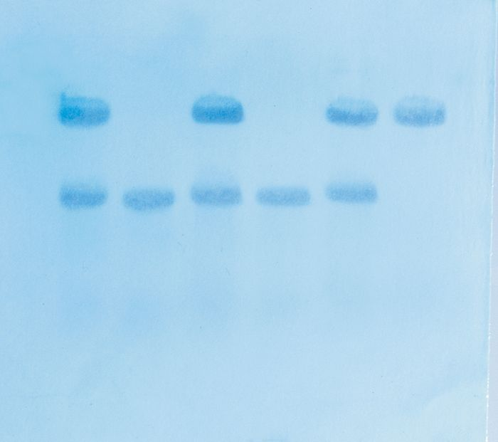 315 - In Search of the Sickle Cell Gene by Southern Blot