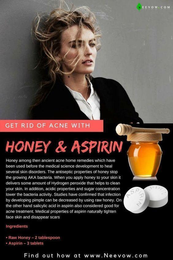 Honey & Aspirin: Best Home Remedies für Akne, Pickel, Akne, Pickel, Zits, Hautpflege, Akne loswerden, Hautroutine, wie Akne, Aknebehandlung, klare Haut, Hautpflege, Aknebehandlung, klare Akne Pickel-Entfernung, Pickel und Mitesser, vertuschen Akne, Howcast, Aspirin und Akne, wie man Akne, diy Akne-Gesichtsmaske, diy Gesichtsmaske, diy Akne, Aspirin für Akne, Honig für Akne aspirin Gesichtsmaske, Aspirin-Gesicht Maske, Akne, wie ich Akne los wurde, Akne schnell loszuwerden, Apfelessig für Akne, Kosmetikerin, Hautpflege