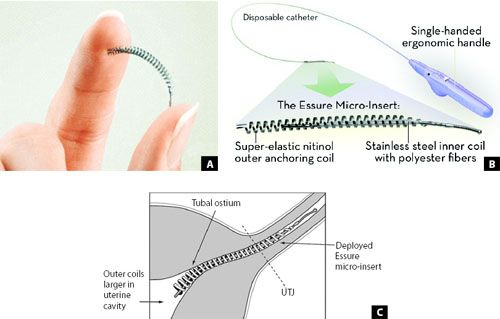 17 Best Images About Essure Harms Hr3920 On Pinterest