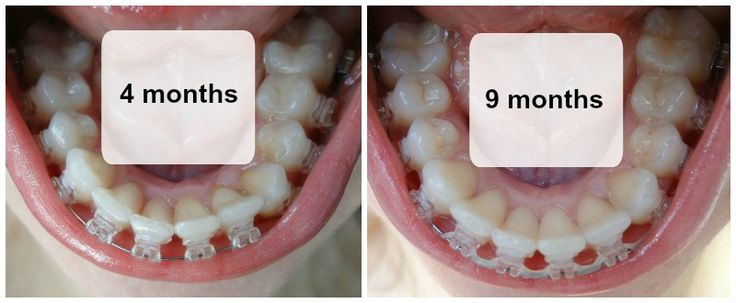 Before After Photos - 9 months Radiance Plus American Orthodontics