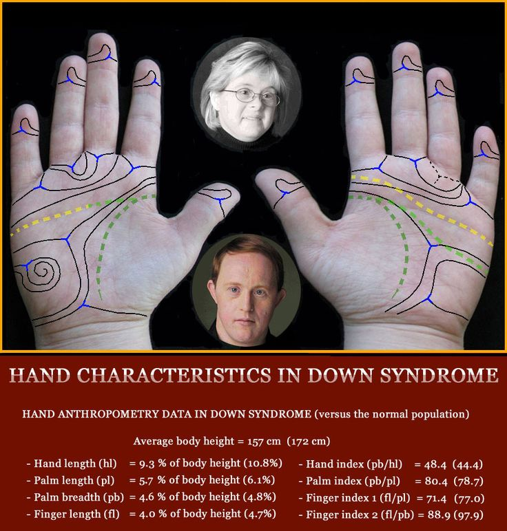 Down syndrome & the Hand: 32 Hand Signs! | Trisomy 21