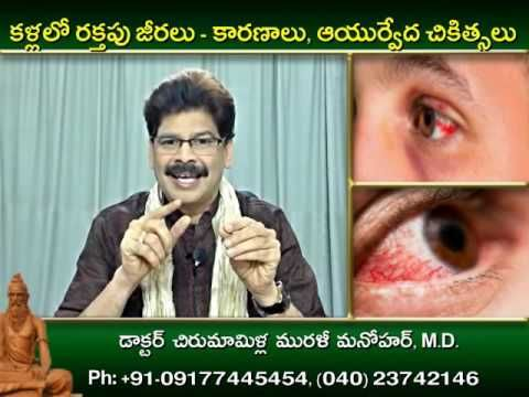 Bloodshot Eyes, Causes and Ayurvedic Treatments in Telugu by Dr. Murali ...