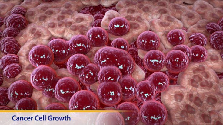 Σαρκώματα μαλακών μορίων