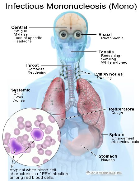 """Mononucleosis aka """"mono"""", caused by Epstein-Barr virus (EBV). Spreads through contact with saliva, mucus from nose/throat, tears, sharing eating utensils or toothbrushes. Treatment: rest, salt water gargle, Tylenol, or corticosteroids in severe cases. Avoid heavy lifting/contact sports as spleen may be enlarged and straining/impact could cause it to burst."""