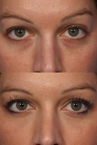 Restylane to Tear Troughs (under eyes). Call Carolina Laser & Cosmetic Center in Winston Salem, NC today to schedule a consultation! 336-659-2663