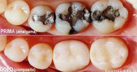 """L'amalgama, il famoso composto usato a base di mercurio usato dai dentisti per """"otturare le carie, è dannoso per la salute e dopo averla tolta ti sentirai con molta più energia"""