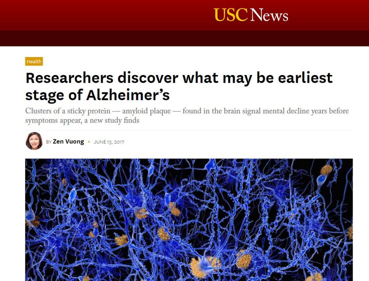 """""""Researchers discover what may be earliest stage of Alzheimers"""" (University of SC News) http://news.usc.edu/122964/researchers-discover-what-may-be-earliest-stage-of-alzheimers/?utm_campaign=crowdfire&utm_content=crowdfire&utm_medium=social&utm_source=pinterest"""