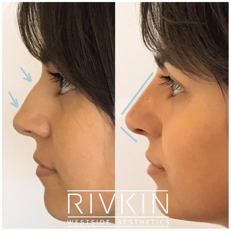 Beautiful results immediately after Dr. Rivkin's 5 Minute