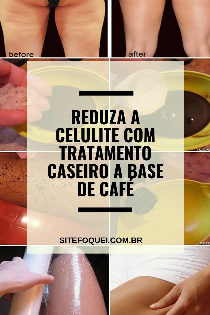 celluli max capsulas