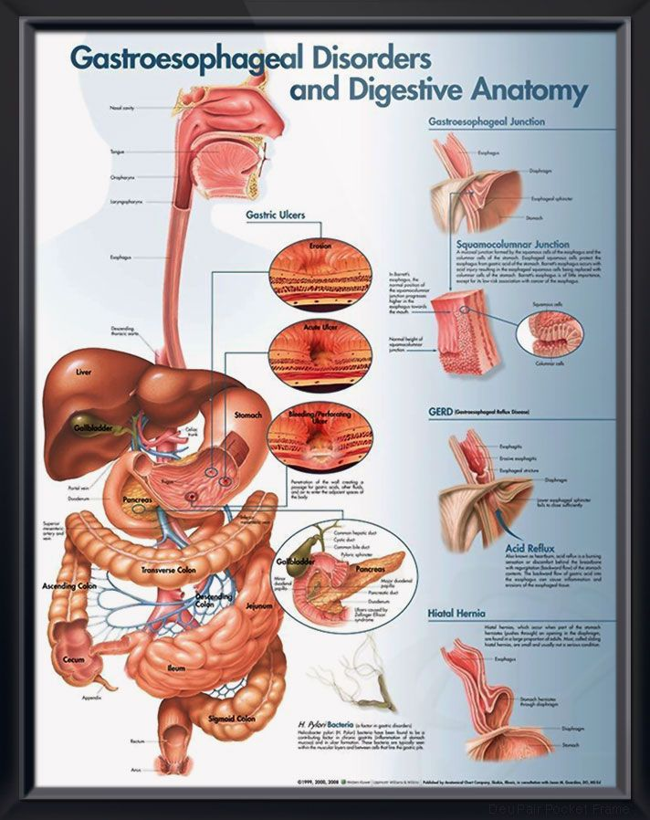 Gastroesophageal Disorders anatomy poster illustrates digestive anatomy and disorders like Barrett's esophagus, GERD, hernia, ulcers. Gastroenterology chart for doctors and nurses.