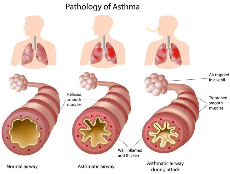 """UNDERSTANDING ASTHMA --  Asthma is a chronic condition that limits your ability to breathe. It affects the airways, which are the tubes that transport air to your lungs. When people with asthma are exposed to a substance to which they are allergic (an """"allergen""""), airways become swollen and filled with mucus. As a resul"""