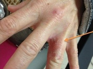 Identifying and Treating Atopic Dermatitis, Eczema, in Children and Adults