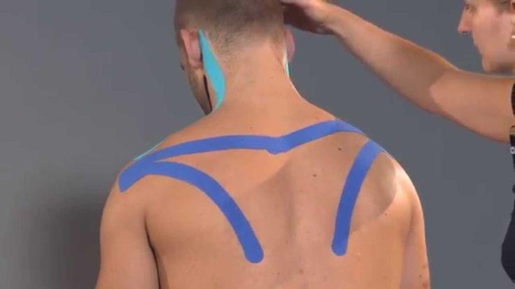 Kintex® Anleitung zum Kinesiologie Tapen bei Migräne