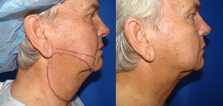 Male Chin Liposuction Before and After Photos