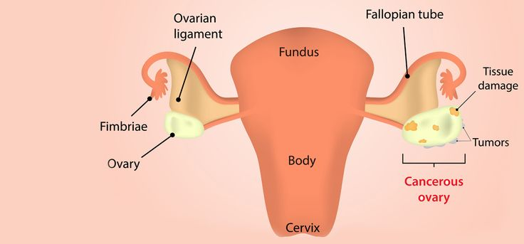 Green Yatra Blog 10 Effective Home Remedies To Treat Ovarian Cancer - Green Yatra Blog