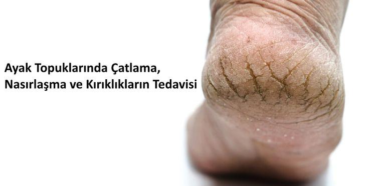 Ayak Topuklarında Çatlama, Nasırlaşma ve Kırıklıkların Tedavisi Dünyadaki birçok insanın mustarip olduğu ayakaltı çatlaklar, kaşıntılar ve kırıklıklar büyük bir sorun olarak ortaya çıkmaktadır. Bu çatlaklar, sertleşme ve nasırlar ilerleyen dönemlerde ciddi bir hastalık riskini de beraberinde getirmektedir. Önleme / Çözüm Kuru, çatlamış ayaklar için bazı nemlendirici ilaçlar kullanılabilir. Over the counter kremler veya spreyler ile …