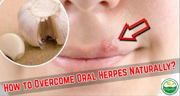 Herpes is a small blister that develops on the lips or around the mouth. It is avery common phenomenon, and each of us once in a lifetime face with it. It all starts with itching, then the bubbles occur, and finally… there is the wound. The oral herpes is usually caused by viruses and antivirals …
