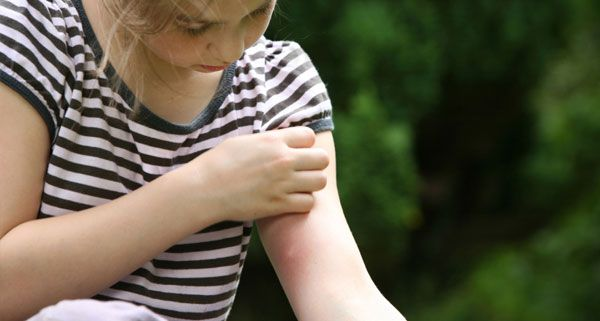 First Aid Training – Insect Bites and Stings          Insect bites and sting are generally easy to treat at home. Still, the effects to ind...