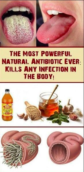 The Most Powerful Natural #Antibiotic Ever: Kills Any #Infection in The #Body  #health #bodycare