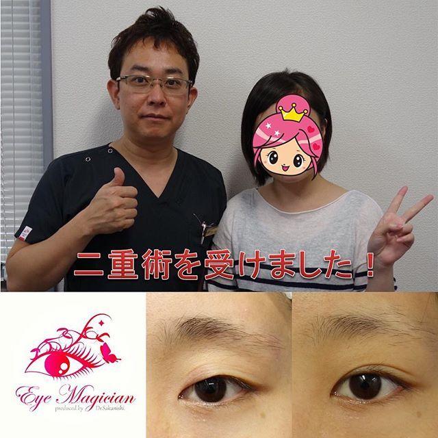 2016/11/28 08:46:23 eye_magician 症例:東京都在住、21歳、学生 ✨グランドライン法®(特殊埋没6点法)✨ 2年連続 日本美容外科学会で発表し大人気 アンケート調査で98%の満足度(2016年発表) 腫れない・バレない・戻らない 究極の埋没法二重術を目指して https://eye-magician.amebaownd.com グランドライン法®は1本の糸を特殊な方法で皮膚側に6点で固定し、糸玉を結膜側に埋め込みます。 そのため、術後の腫れが少なく、目を閉じても全く分からない、究極に長持ちする二重ラインになります 人気の秘密はこれですね スッピンでも綺麗な二重、手に入れませんか 0120-832-900…