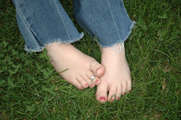 Can going barefoot improve your health? Awesome article from Mercola.Coupon Submitt, Nails Info, Mass Coupon, Dry Nails, Earth Mats, Nails Problems, Coconut Oil, Diy Beautiful, Toes Rings
