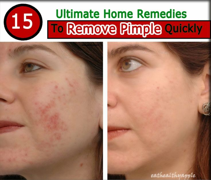 15 Ultimate Home Remedies To Remove Pimple Quickly- It works for sure..