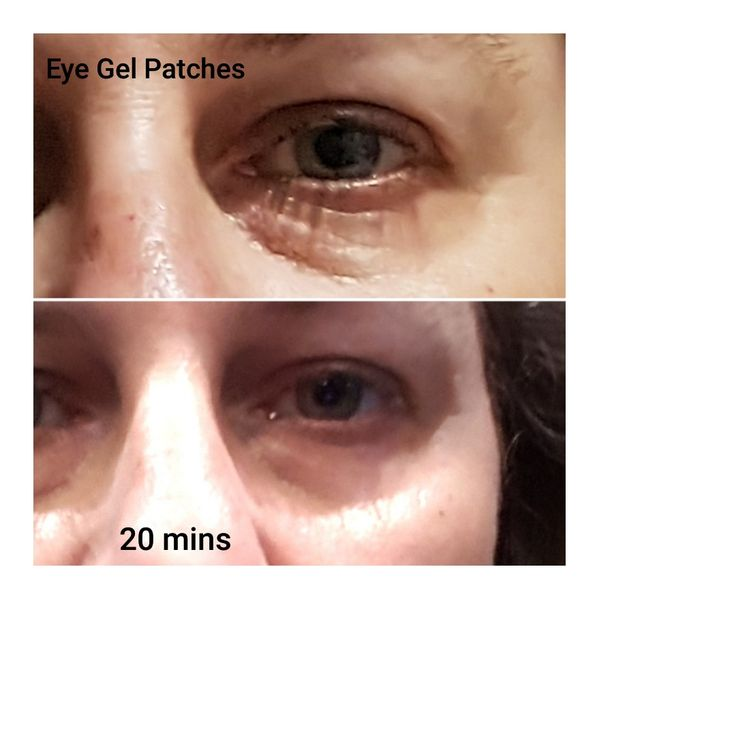 God these gel patches are amazing - contact me for details on how to purchase