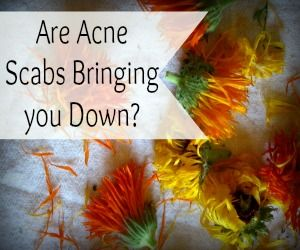 So today's topic is a bit icky, but I know there are loads of you who could benefit from a little know how about acne scabs and how to heal them.