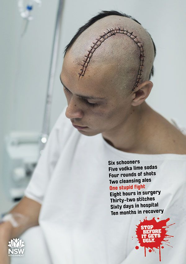 Stop Before It Gets Ugly | NSW Government | Everyone knows that alcohol fuelled violence is ugly. And the results of that violence are even uglier, from smashed faces and broken bones to shattered lives and wasted futures.  The consequences of alcohol fuelled violence can be life changing for both victims and aggressors.  Know your limits. Pace yourself.  Recognise the 'tipping point' when your behaviour starts to change, and stop before it gets ugly.