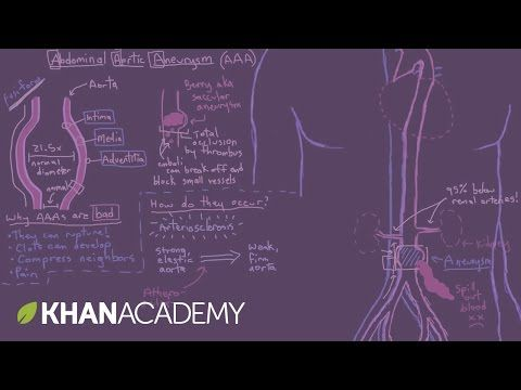 Abdominal aortic aneurysms - YouTube