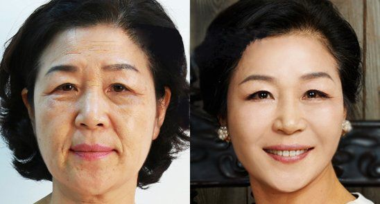 """이장한 박사의 Goji Cream 은 제가 사용해본 최상의 주름 개선 제품입니다. 더는 어려보일 수 없을 거라 생각했어요. 얼마나 감사한지 몰라요!"""" 53세의 최하영 씨는 Goji Cream을 사용한 사진을 제공했다. 정말 달라 보인다."""