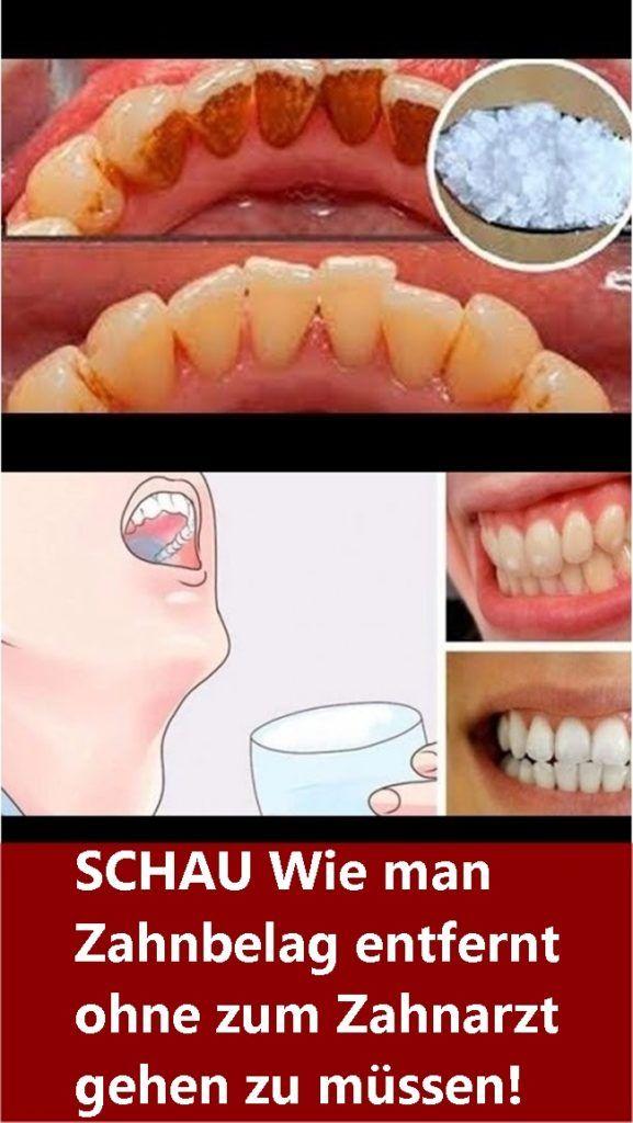 SCHAU Wie man Zahnbelag entfernt ohne zum Zahnarzt gehen zu müssen! | njuskam!