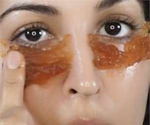 How Women in Wisconsin Remove Eye Bags & Lip Lines Fast
