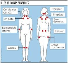 La Fibromyalgie                                                                                                                                                                                 Plus