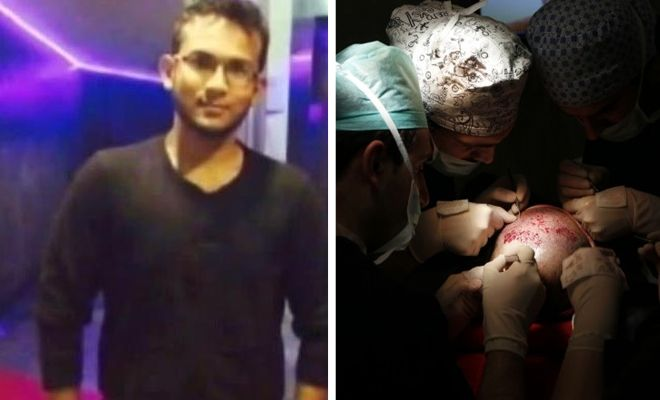 In a shocking incident, a final year medical student passed away a day after undergoing hair transplant surgery!