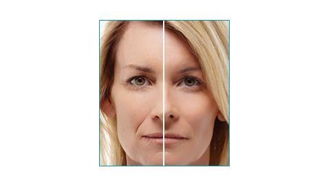 Mon Site Beauté http://www.monsitebeaute.com/dossiers/beaute/esthetique-et-anti-age/menopause-quelles-consequences-sur-la-peau