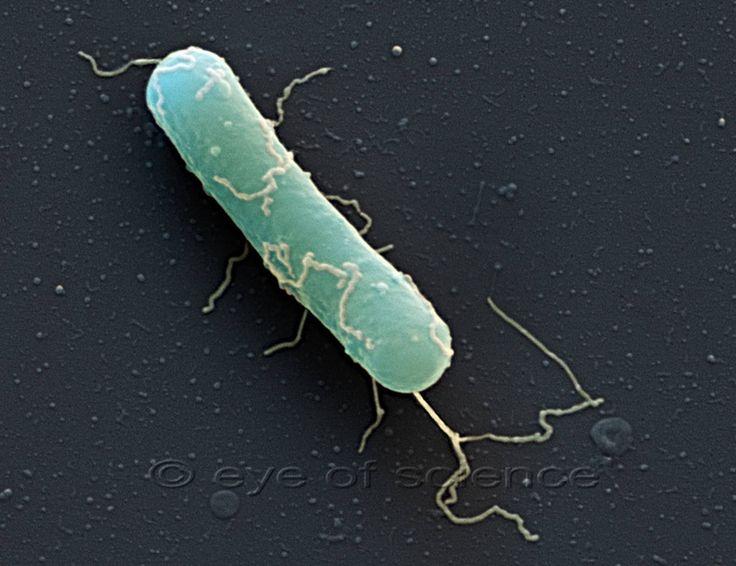 Botulism The bacteria Clostridium botulinum usually is found in soil (SEM).
