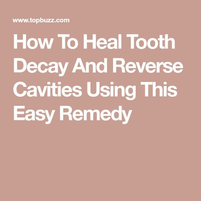How To Heal Tooth Decay And Reverse Cavities Using This Easy Remedy